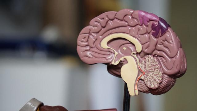 Peritos Neurocirujanos
